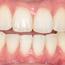 高雄牙齒美白推薦